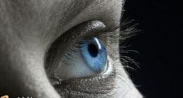 Laser Zaps Away Unwanted Eye Color